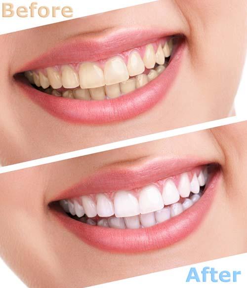 photodune-10059042-bleaching-teeth-treatment-s